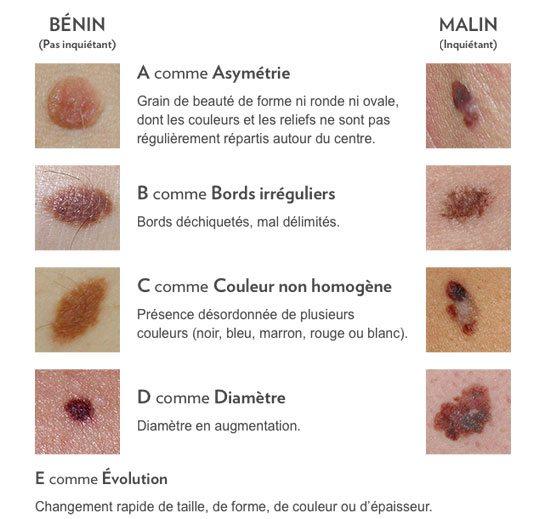Typologie de grains de beauté