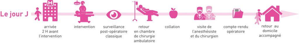 Schéma de chirurgie ambulatoire