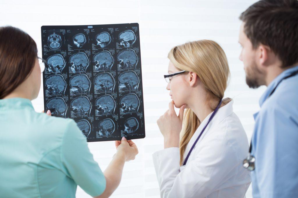 Analyse examen cérébral